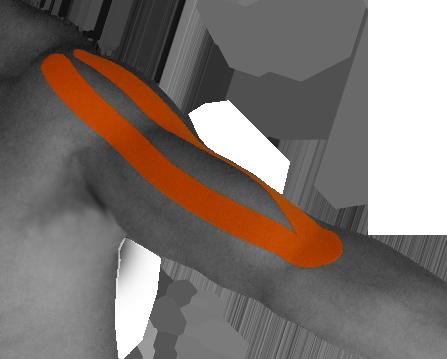 KinesioTaping_Biceps