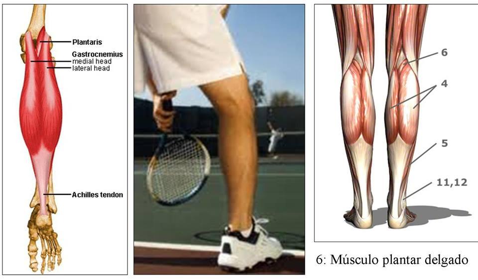 pierna de tenista
