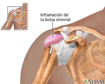 bursitis de hombro