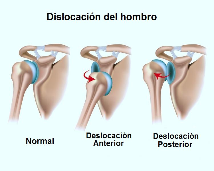 dislocacion de hombro