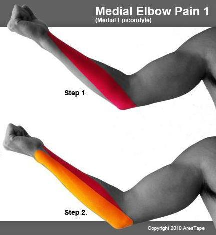 1_medial_elbow_pain